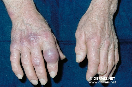 localisation: finger diagnosis: Acrodermatitis Chronica Atrophicans Herxheimer