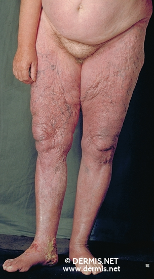 localisation: legs feet diagnosis: Acrodermatitis Chronica Atrophicans Herxheimer