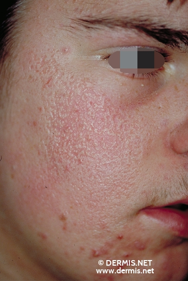 localisation: cheek diagnosis: Atrophodermia Vermiculata