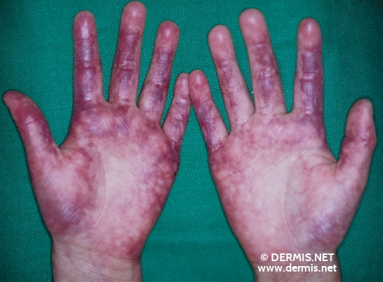 localisation: hands palms finger diagnosis: Rothmund-Thomson Syndrome