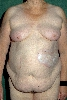 localisation: flank, diagnosis: Localized Scleroderma