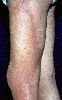 localisation: upper leg, diagnosis: Localized Scleroderma
