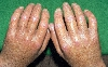localisation: hands, diagnosis: Progressive Systemic Scleroderma