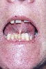 localisation: peri-oral, sublingual, diagnosis: Progressive Systemic Scleroderma