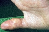 localisation: Finger, Diagnose: Calcinosis cutis