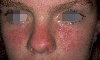 localisation: cheek, nose, diagnosis: Subacute Cutaneous Lupus Erythematosus SCLE
