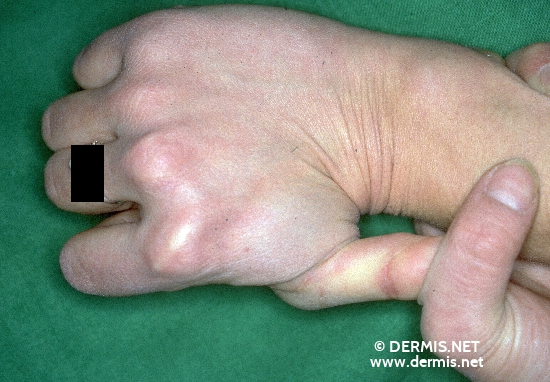 localisation: digital metacarpo-phalangeal joint diagnosis: Ehlers-Danlos Syndrome