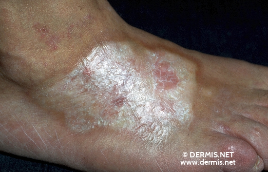 localisation: back of the feet diagnosis: Localized Scleroderma