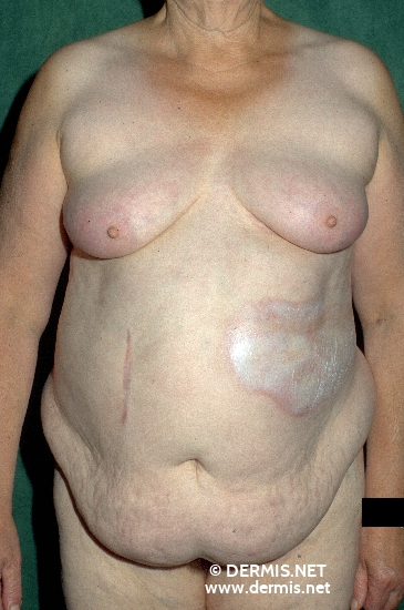 localisation: flank diagnosis: Localized Scleroderma