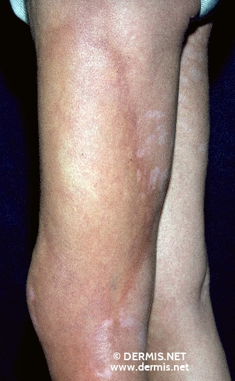 localisation: upper leg diagnosis: Localized Scleroderma