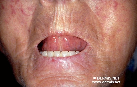 localisation: face diagnosis: Progressive Systemic Scleroderma