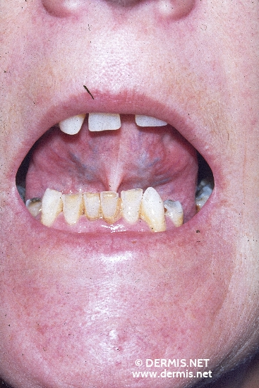 localisation: peri-oral sublingual diagnosis: Progressive Systemic Scleroderma