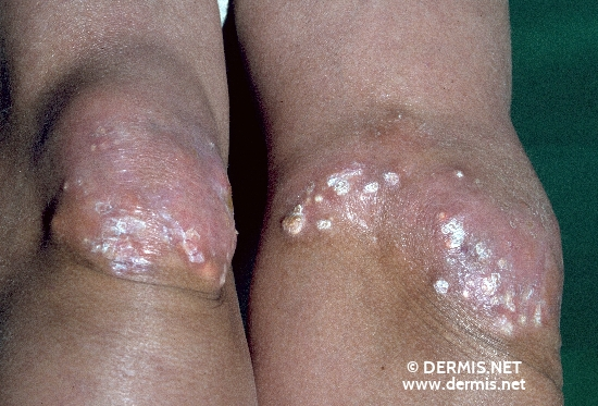 localisation: knee diagnosis: Calcinosis Cutis