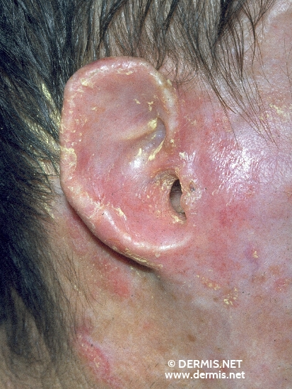 localisation: ear diagnosis: Discoid Lupus Erythematosus (DLE)