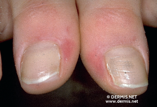 localisation: periungual (fingernail) diagnosis: Chilblain Lupus