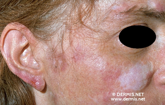 localisation: cheek diagnosis: Discoid Lupus Erythematosus (DLE)