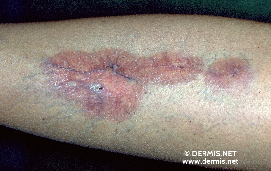 localisation: lower leg diagnosis: Necrobiosis Lipoidica