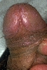 localisation: gland, diagnostic: Lichen Planus of the Mucosa