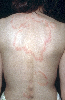 localisation: back, diagnosis: Tinea Corporis