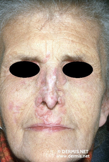 localisation: cheek nose diagnosis: Lupus Vulgaris