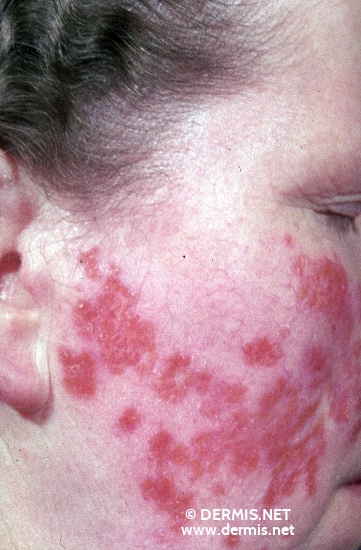 localisation: cheek diagnosis: Lupus Vulgaris