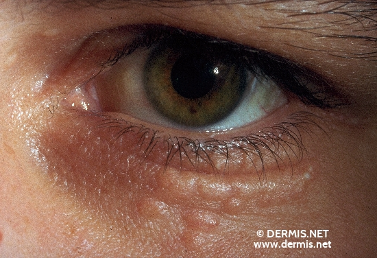 localisation: lower eyelid diagnosis: Syringoma, Disseminated