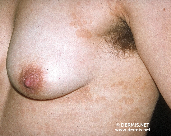 localisation: Brust Axillenregion Diagnose: Pityriasis versicolor