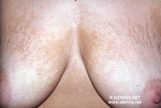 localisation: chest mamma diagnosis: Pityriasis Versicolor