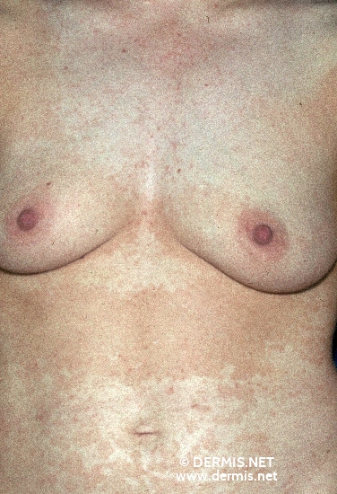 localisation: decolleté mamma abdomen diagnosis: Pityriasis Versicolor