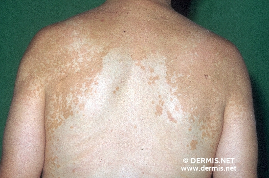 localisation: back of neck back shoulder region diagnosis: Pityriasis Versicolor