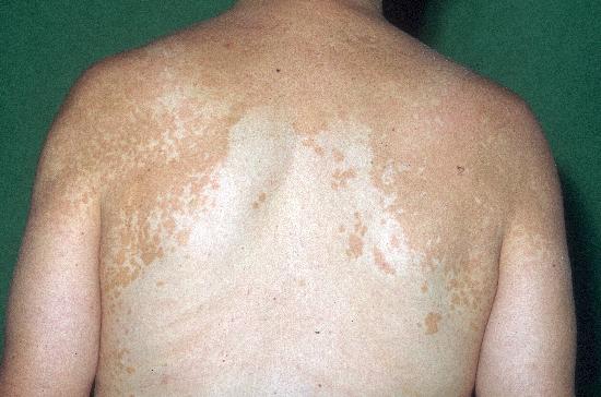 Em uma testa o pigmentary nota a remoção