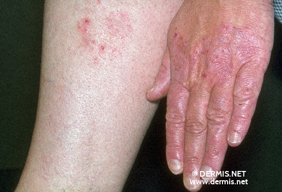 Eczema di fotografia di psoriasi di neurodermatitis