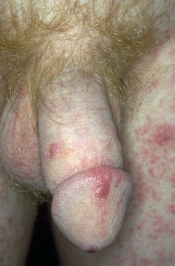 Lichen planus - Symptoms - NHS Choices