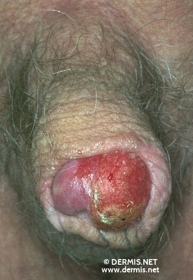 localisation: glans penis diagnosis: Squamous Cell Carcinoma, Penis