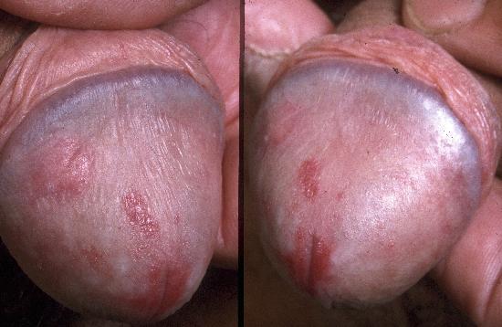 Genital infections | Genital herpes