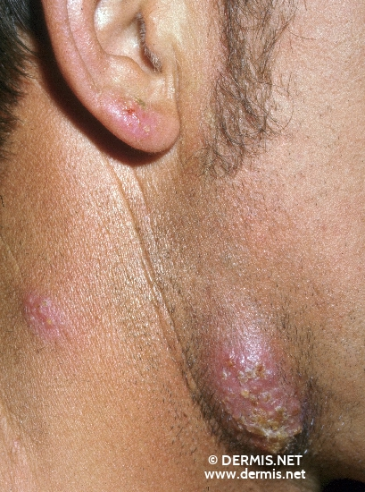 localisation: submandibular region diagnosis: Tinea Barbae Profunda
