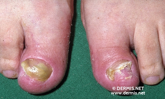 localisation: toenail subungual (toe nail) diagnosis: Onychomycosis