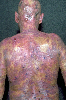 localisation: head, back, diagnosis: Mycosis Fungoides