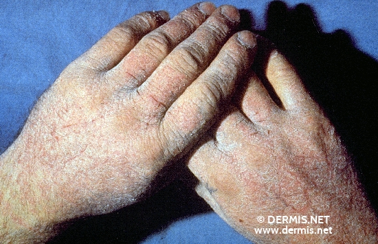 localisation: back of the hands finger diagnosis: Chronic Cumulative Irritant Contact Eczema