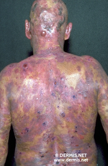 localisation: head back diagnosis: Mycosis Fungoides