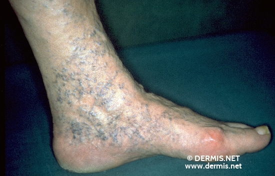 localisation: feet diagnosis: Chronic Venous Insufficiency, Grade II