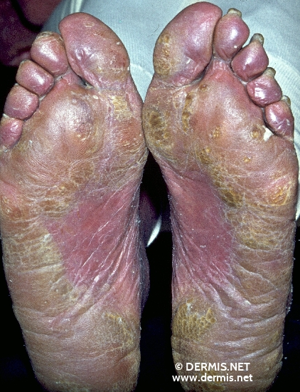 localisation: sole subungual (toe nail) diagnosis: Sezary Syndrome