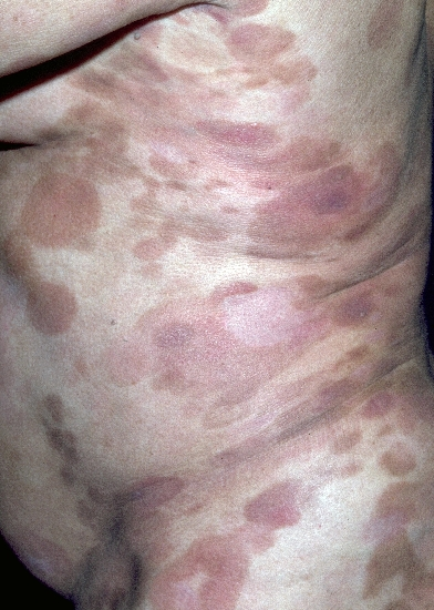 localisation: Stamm Beine Diagnose: Mycosis fungoides