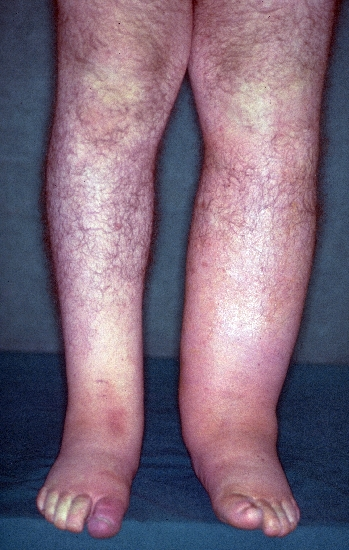 localisation: lower leg toe diagnosis: Erysipelas Lymphoedema