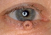 localisation: lower eyelid, diagnosis: Keratoacanthoma