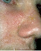 localisation: cheek, nose, diagnosis: Herpes Simplex