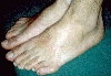 localisation: toe, diagnosis: Malformations of Extremities