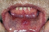 localisation: mucous membranes (oral, nasal), internal aspect of the lower lip, diagnosis: Secondary Lues