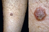 localisation: lower leg, diagnosis: Seborrheic Keratosis