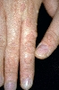 localisation: hands, diagnosis: Verruca Vulgaris